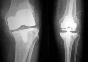 Αναθεώρηση αρθροπλαστικής γόνατος