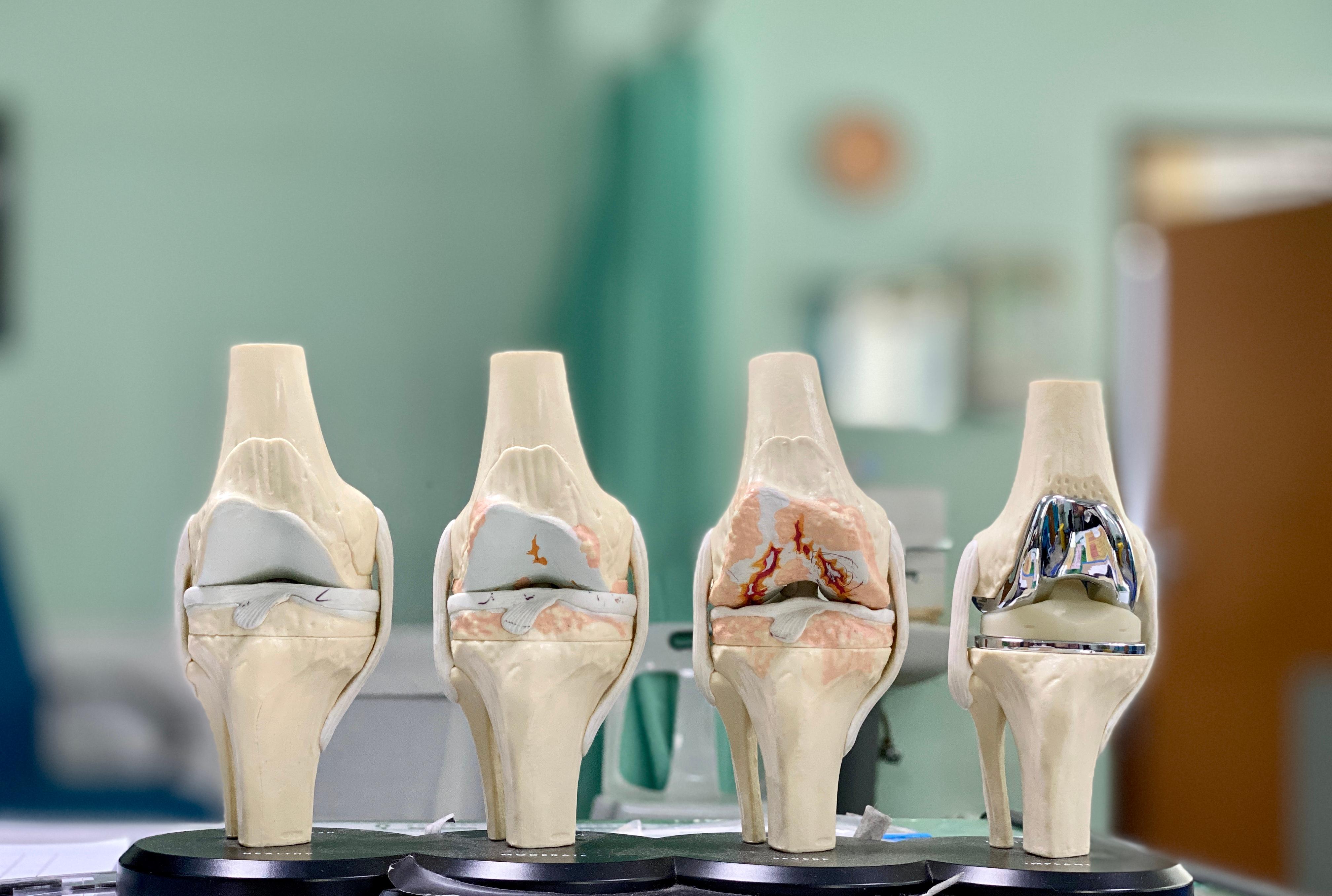 Στάδια στεοαρθρίτιδας - Αρθροπλαστική γόνατος
