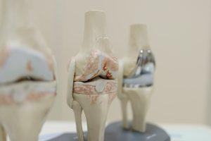 Οστεοαρθρίτιδα - Αρθροπλαστική γόνατος