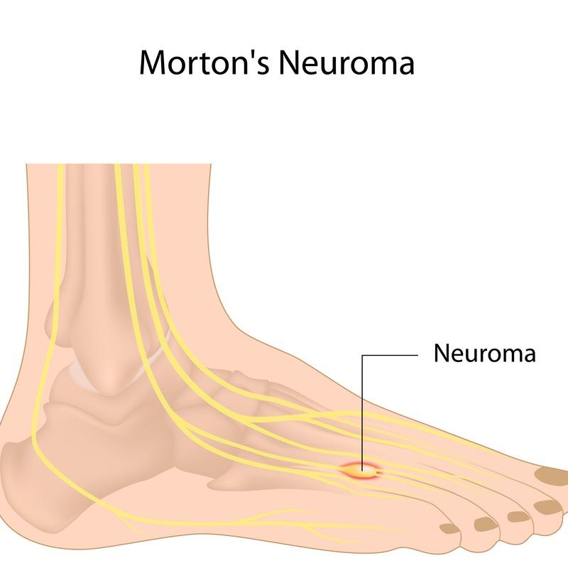 Νεύρωμα (Νευρίνωμα) Morton