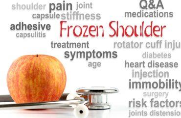 Παγωμένος Ώμος (Frozen Shoulder)