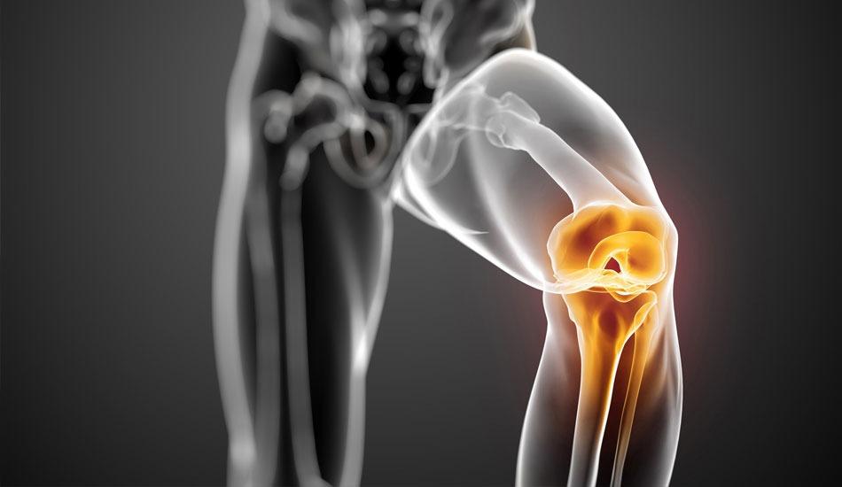 Χόνδρος γόνατος