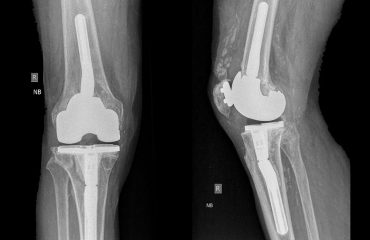 knee ahtroplasty revision