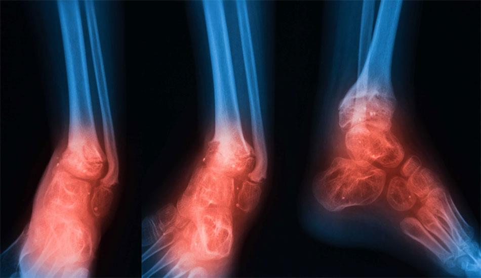 limokseis orthopedikes