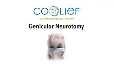 coolief neurotomy