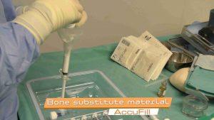 Plastiki-ypochondriou-ostou-subchondroplasty